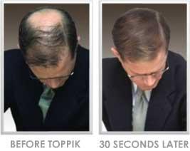 پودر افزایش مو تاپیک ساخت آمریکا