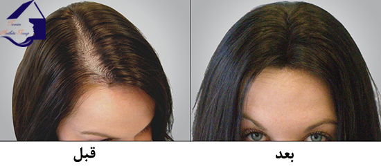 Hair Loss Package_1