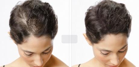 Hair Loss Package_4