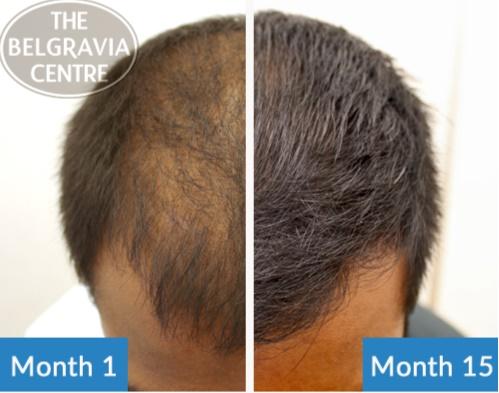Hair Loss Package_5