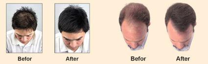Hair Loss Package_8