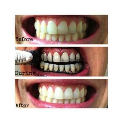 Miracle Teeth_2
