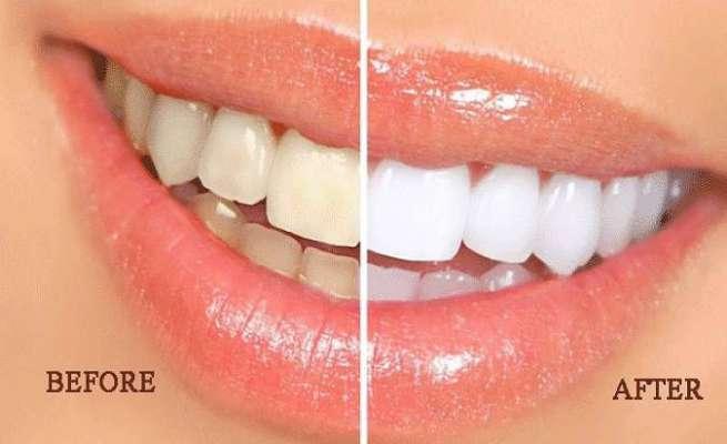 Miracle Teeth_6
